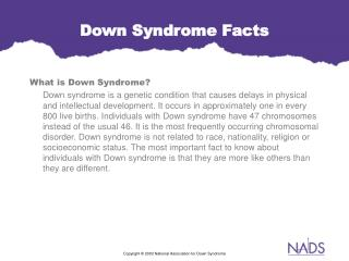 powerpoint sample of down syndrome